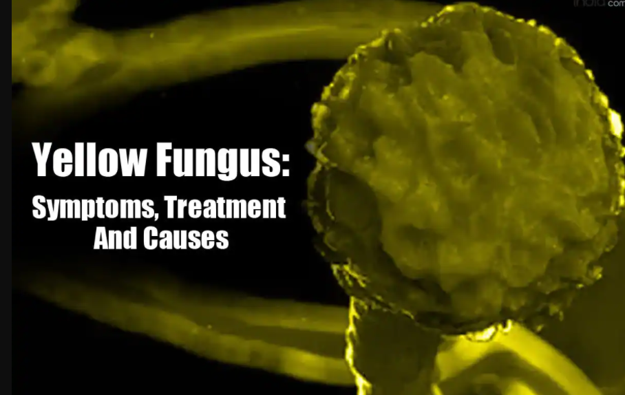 What is Black fungus| White & Yellow fungus| Be Alert!